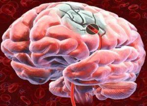emorragia cerebrale02